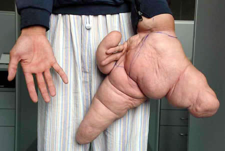 Lui Hua World's Largest Hand his left thumb is 10.2 inches long
